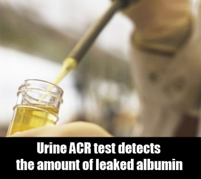 Urine Albumin and Albumin/Creatinine Ratio