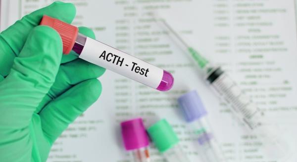ACTH (Adrenocorticotropic Hormone)