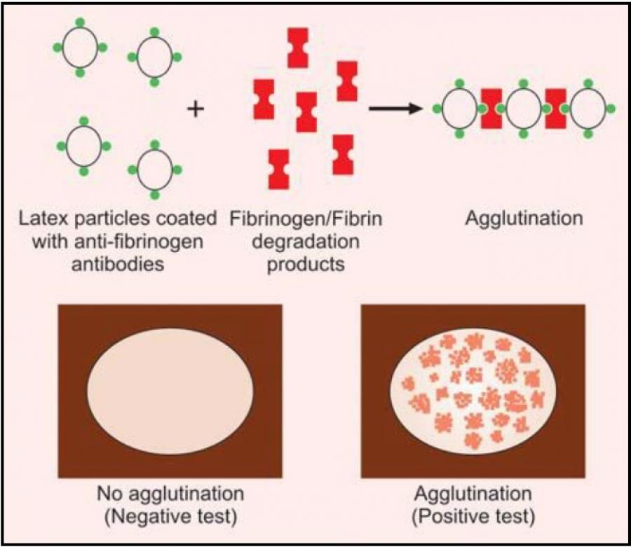 TEST FOR FIBRINOGEN/FIBRIN DEGRADATION PRODUCTS (FDPs)