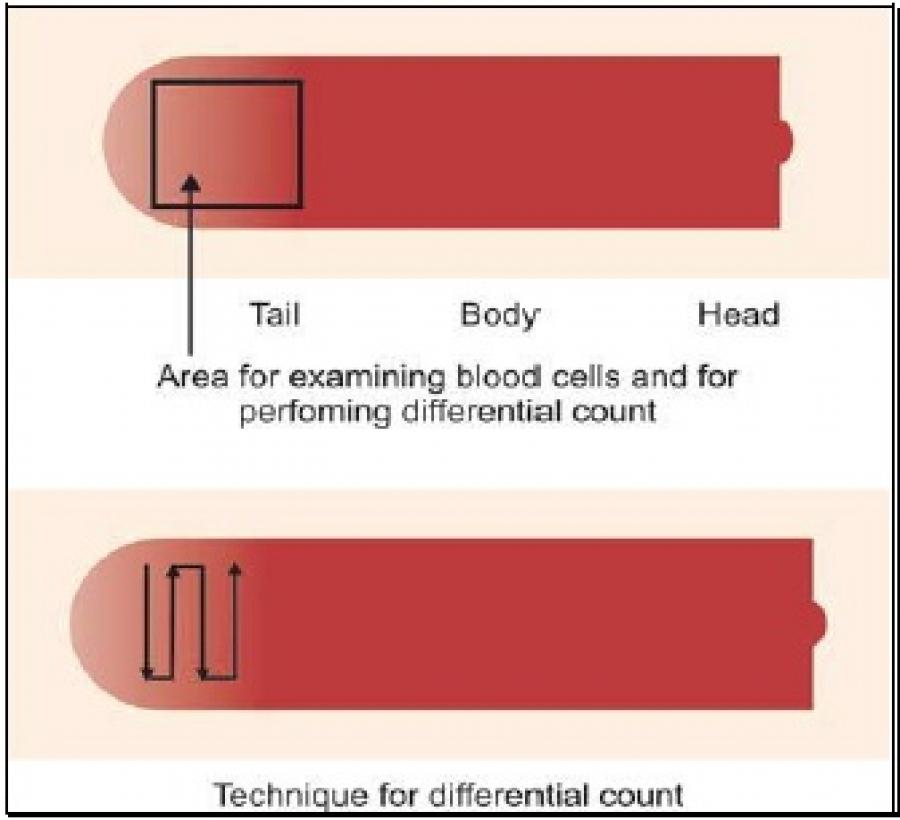 EXAMINATION OF BLOOD SMEAR