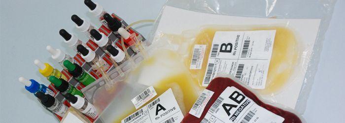 Cross Match Procedure in Blood Bank (Manual Method)
