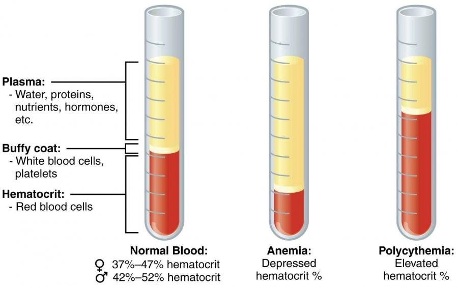 MACRO METHOD (WINTROBE METHOD) FOR ESTIMATION OF PACKED CELL VOLUME (PCV) OR HEMATOCRIT