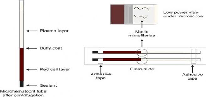 Microhematocrit tube concentration technique for demonstration of microfilaria