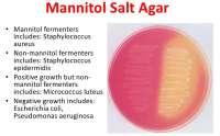 MANNITOL SALT AGAR TEST