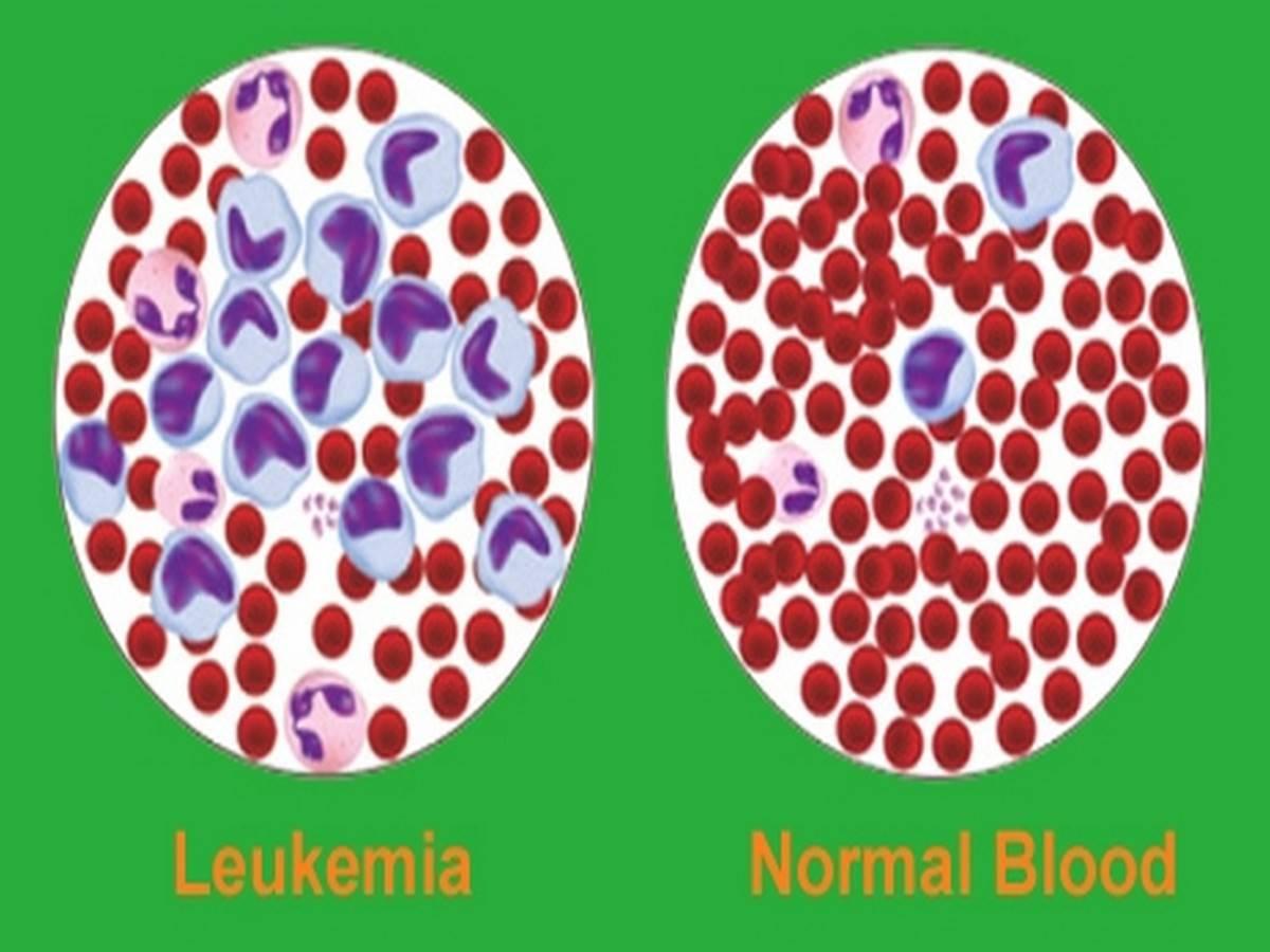 Leukemia Vs Normal Blood