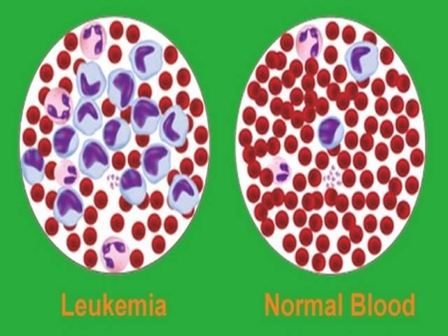 Diagnosis of Acute Myelocytic Leukemia (AML) and Acute Lymphocytic Leukemia (ALL)